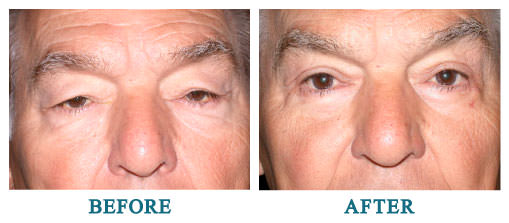 Bilateral upper and lower lid blepharoplasty