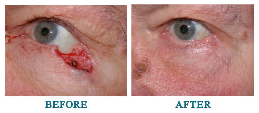 Repair of surgical defect from Mohs excision of basal cell carcinoma