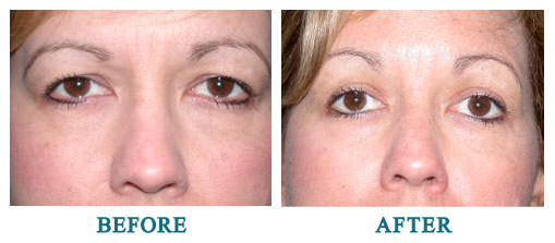 Bilateral upper lid blepharoplasty