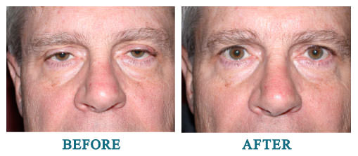 Bilateral upper lid ptosis repair