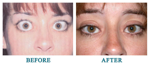 Thyroid eye disease. Bilateral upper and lower lid retraction repair
