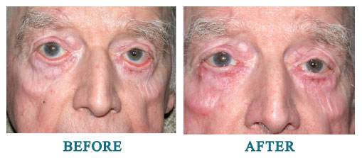 Bilateral lower lid ectropion repair